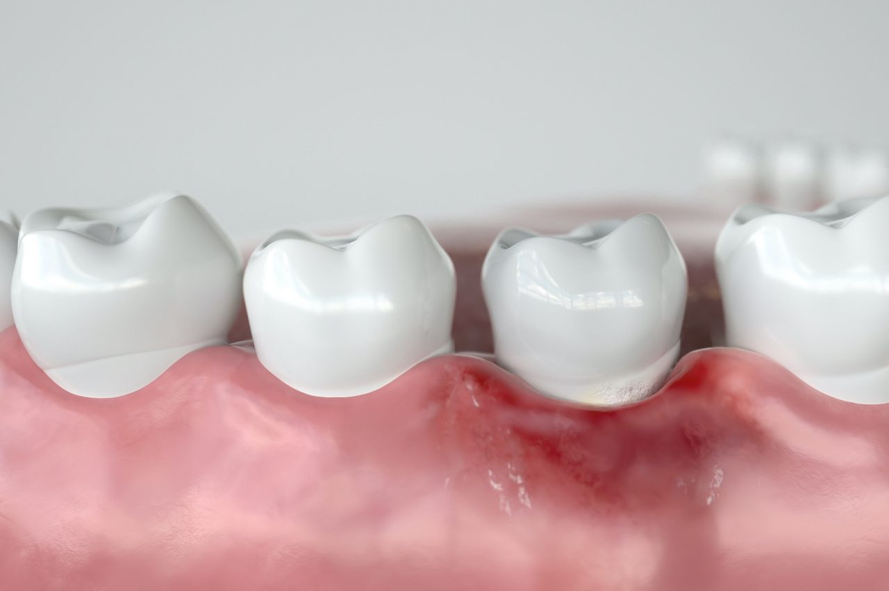 Caries in three stages - Stage 1 Gingivitis -- 3D Rendering